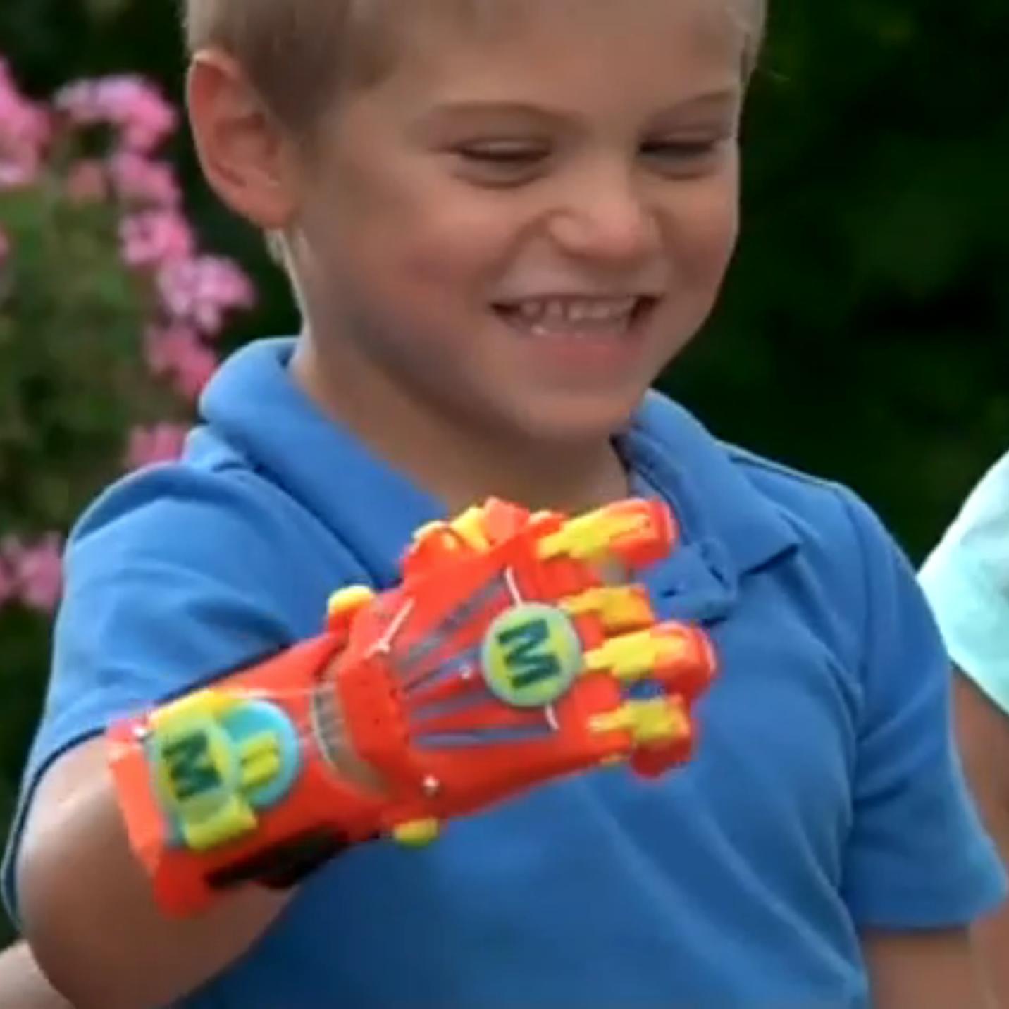 Des proth ses de main fabriqu es gr ce des imprimantes - Imprimante 3d enfant ...